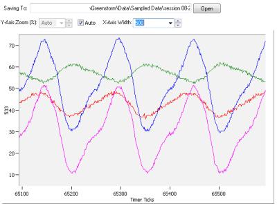 Strain_Rosette_Data_2_400w